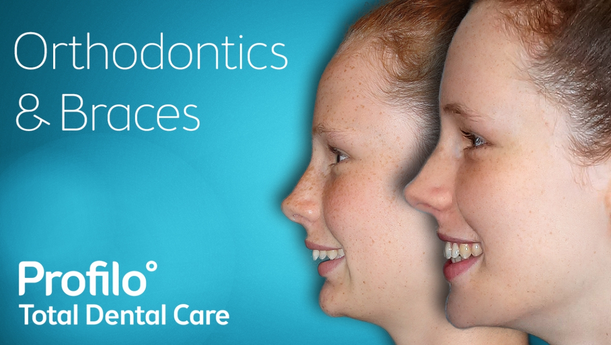 Orthodontics | Your questions answered