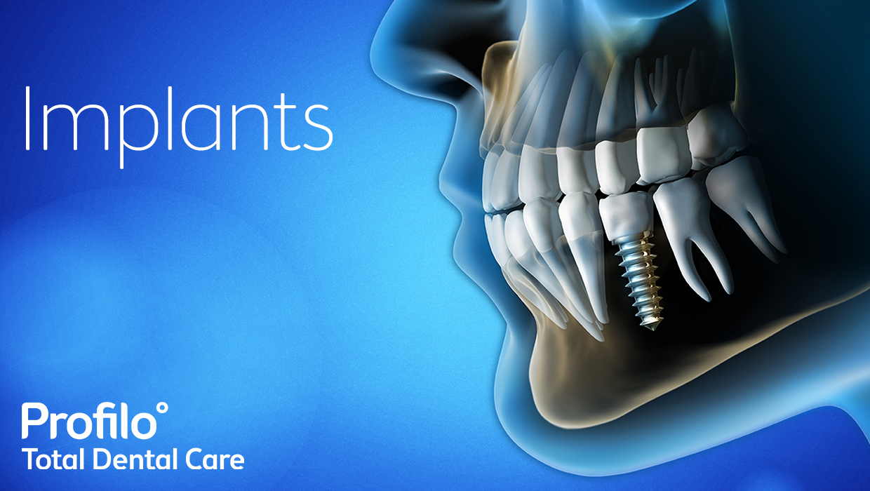 Dental Implants | Your questions answered
